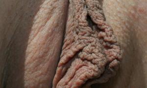 Большие половые губы 309